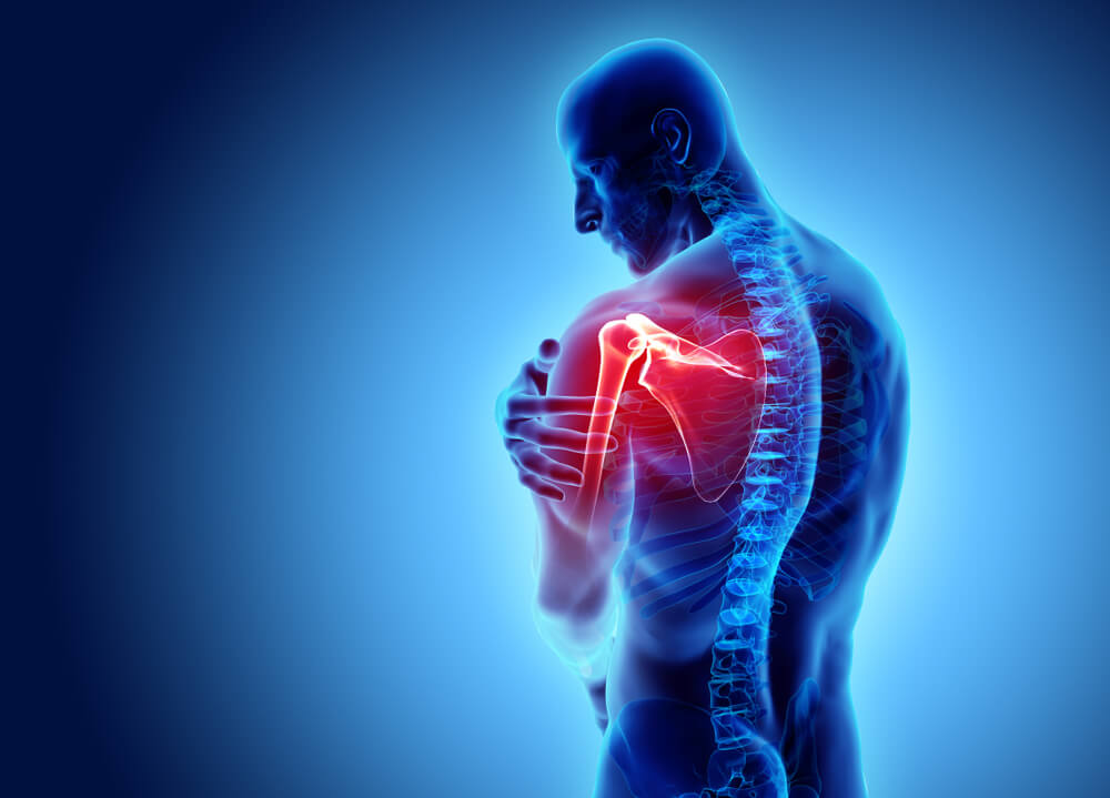 3D Illustration of Shoulder Pain