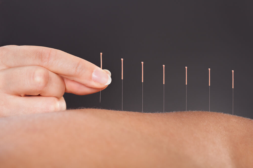 A set of dry needles on a persons body