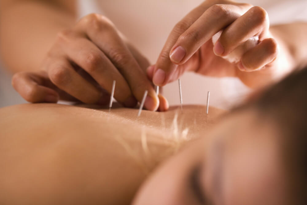 Woman experiencing dry needling by an expert