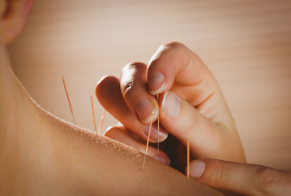 Person experiencing dry needling or acupunture