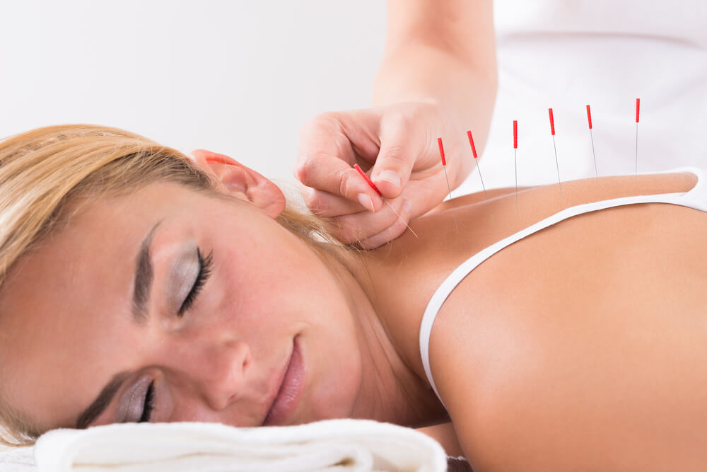 A woman having a relaxing acupuncture session